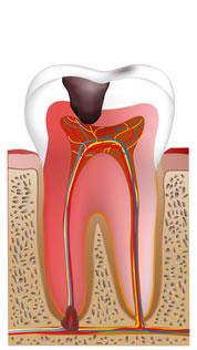 虫歯菌の侵食度